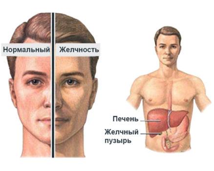 увеличения показателей желчного пигмента