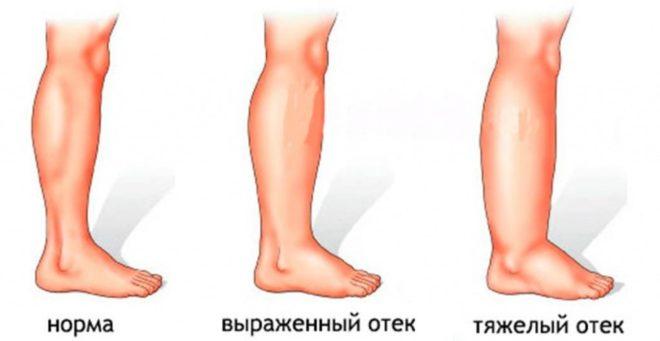 эффективные таблетки от отеков ног