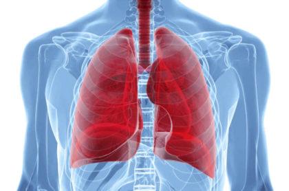 лимфома лёгких