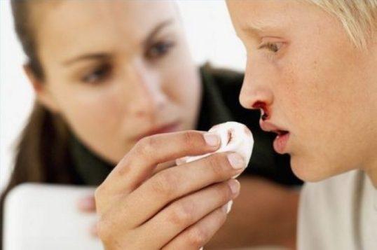 у ребенка кровь из носа