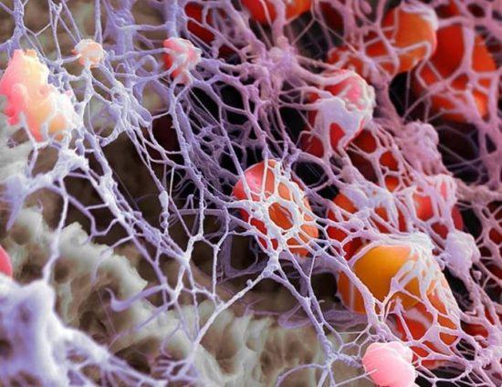 Уровень тромбоцитов в крови, низкий уровень тромбоцитов в крови, повышенный уровень тромбоцитов