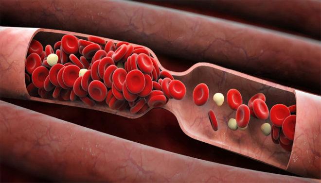 Чем опасен тромбоцитоз