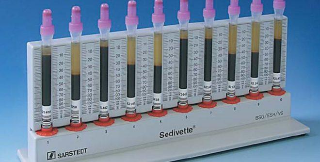 сдаем анализ крови