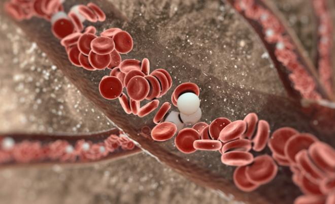 заболевание крови