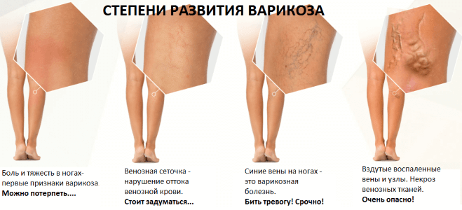 Почему появляются синяки на ногах без причины у женщин?