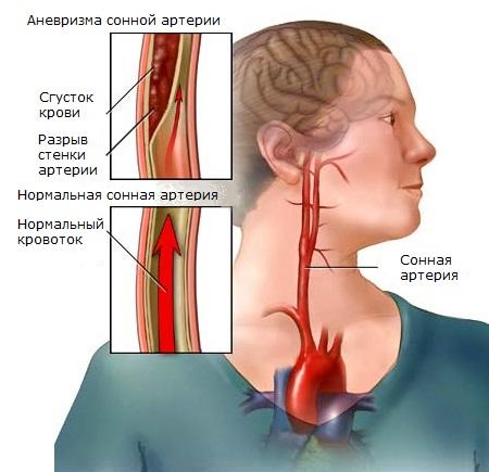 заболевание сонной артерии