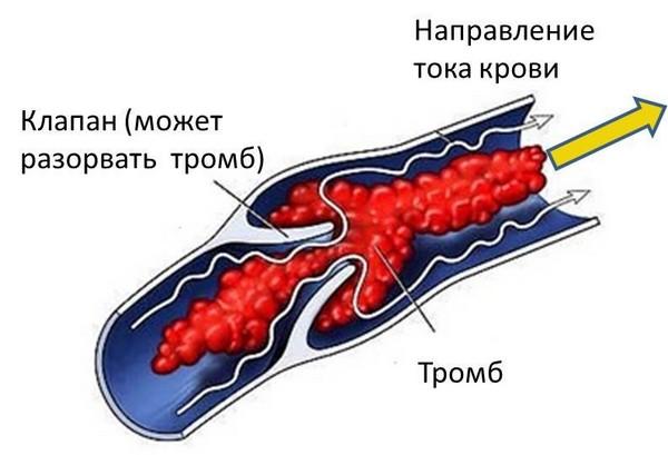 возникновение тромбоза