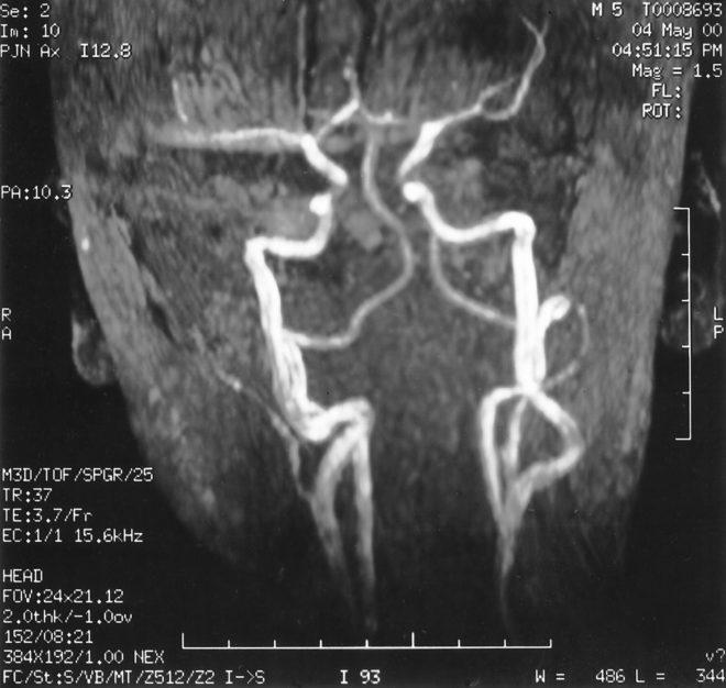 снимок после МРТ