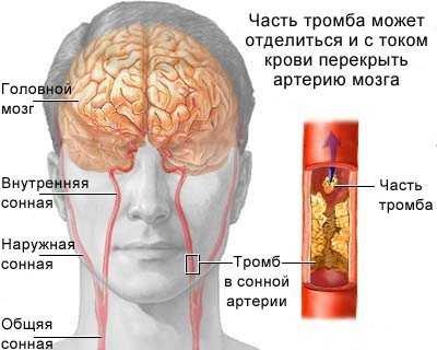 тромб в сонной артерии