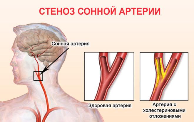 стеноз сонной артерии