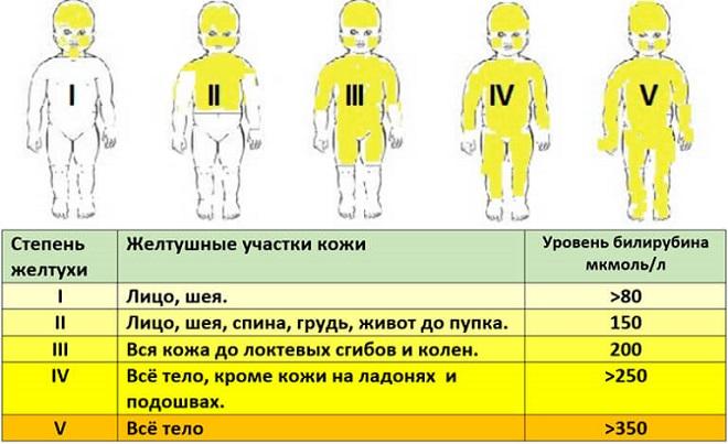 желтуха у детей
