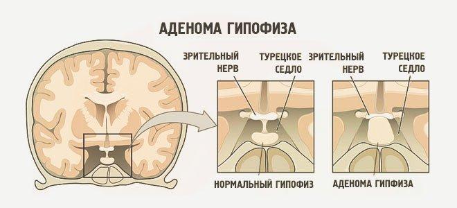 развитие аденомы