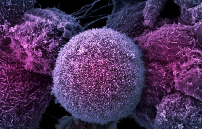 реактивный лимфоцитоз
