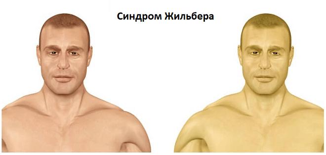 почему желтая кожа