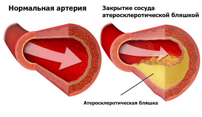 бляшки в артерии