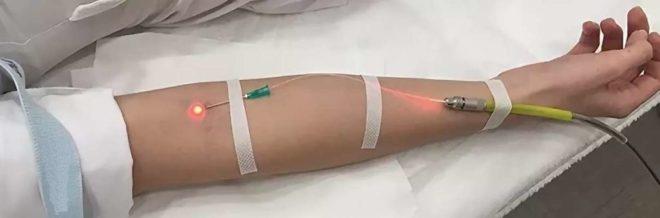 чистка крови лазером