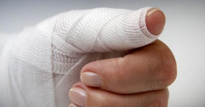 палец в бинте