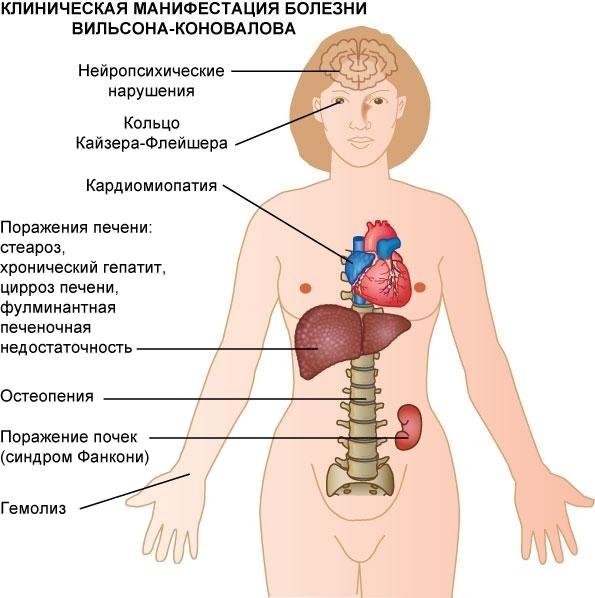 симптомы болезни