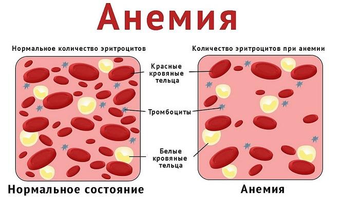 паталогия при анемии