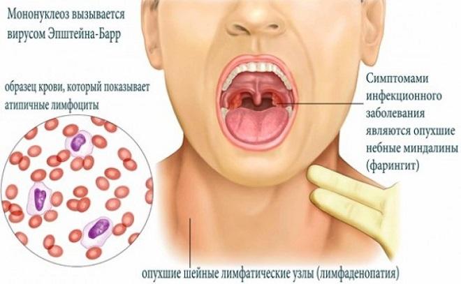 ангина в горле