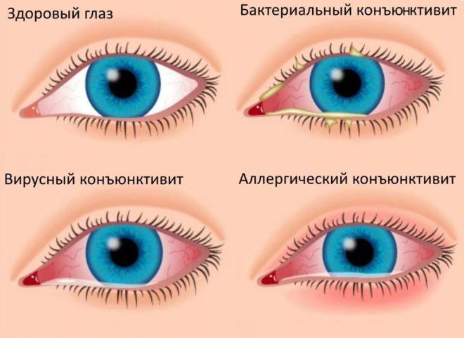 формы заболевания глаз