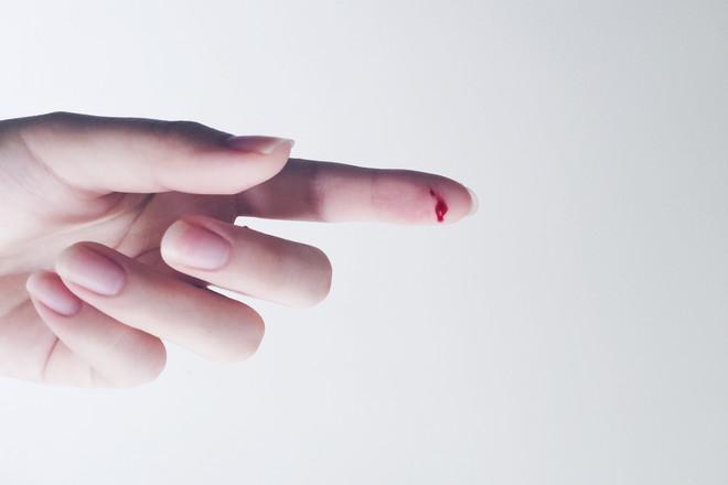 Как быстро остановить кровь из раны