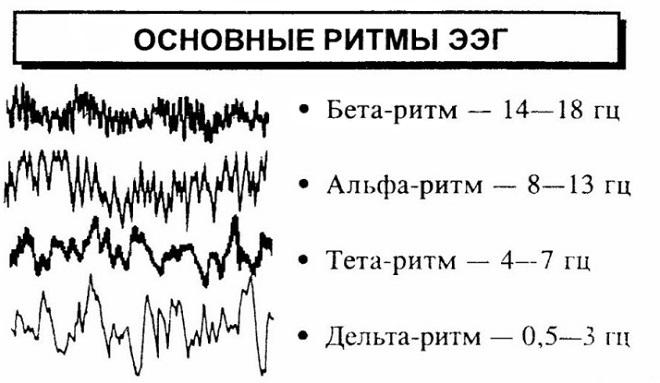 Расшифровка электроэнцефалограммы