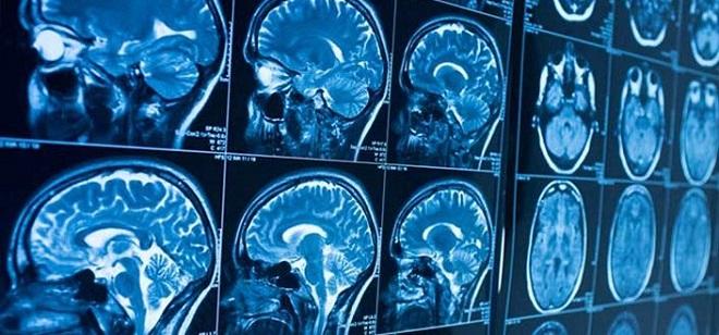 обследование работы головного мозга