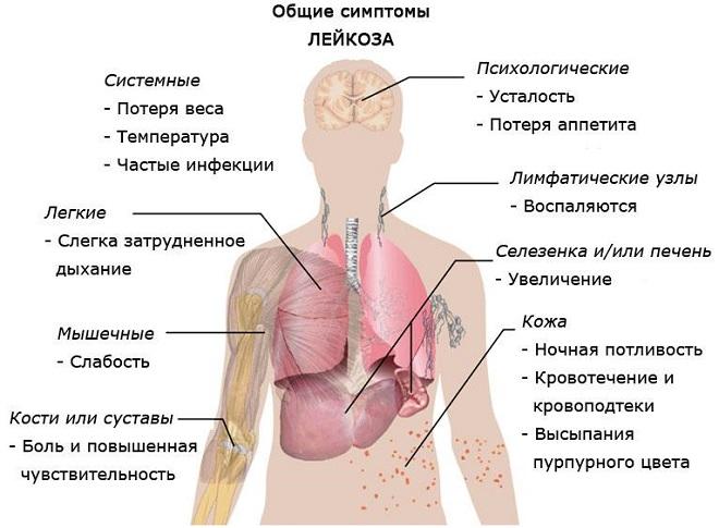 Причины и симптомы острого Т-клеточного и В-клеточного лимфобластного лейкоза
