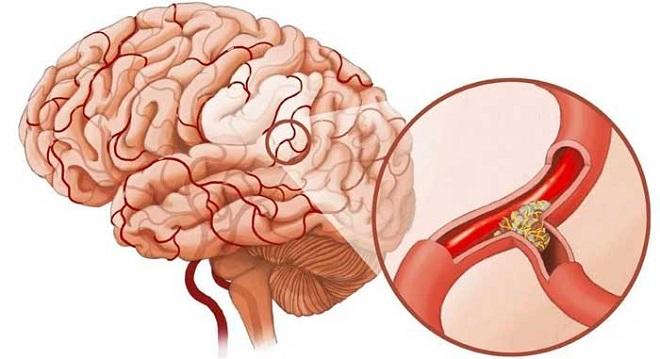 склероза сосудов головного мозг