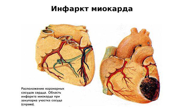 Сердце с участком некроза вызванного инфарктом