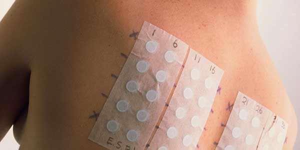 аплликационный аллергический тест