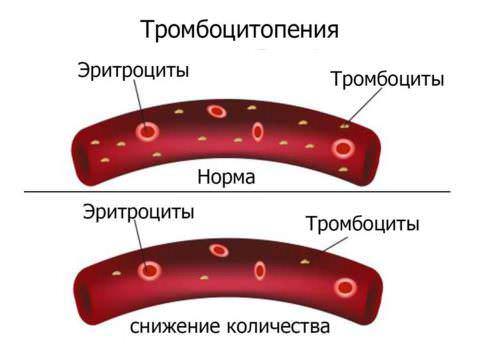 Болезнь Верльгофа (тромбоцитопеническая пурпура)