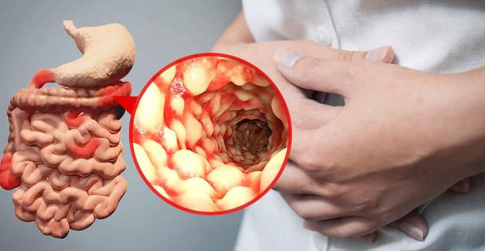 Кровь в кале возможные заболевания, диагностика и лечение