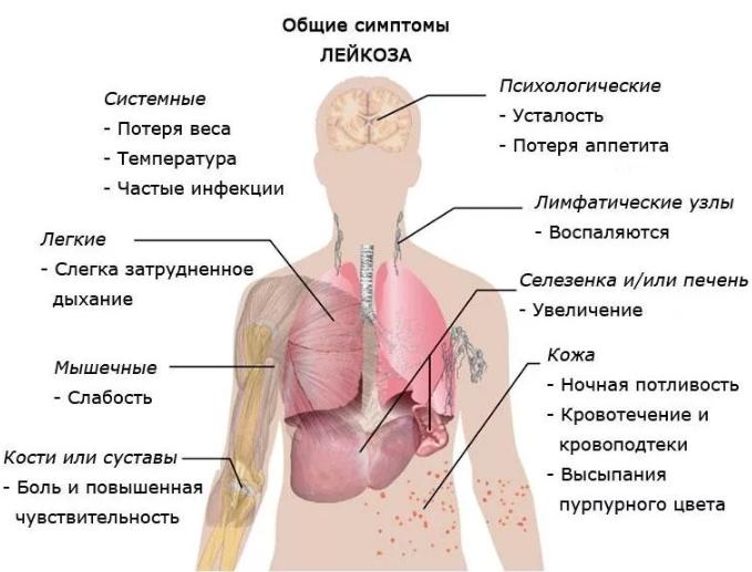 Острый миелобластный лейкоз симптомы, прогноз жизни