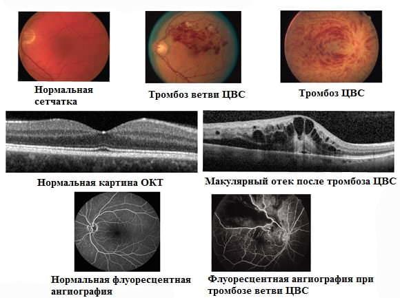 Тромбоз ветвей сетчатки глаза