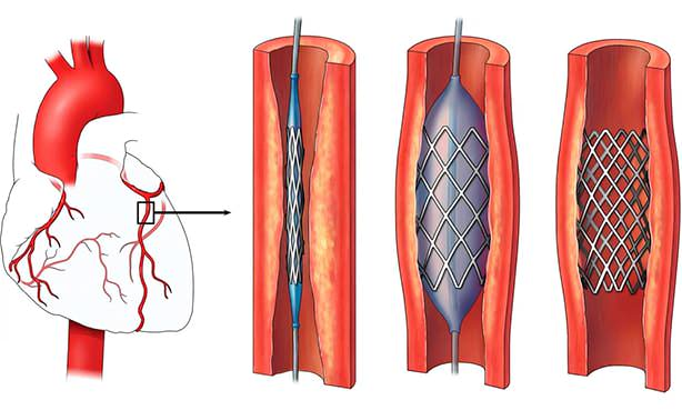 Изображение стента в артериях сердца