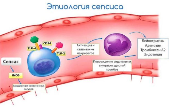 Сепсис крови что это такое, последствия и лечение