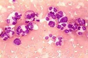 Пониженные нейтрофилы в крови