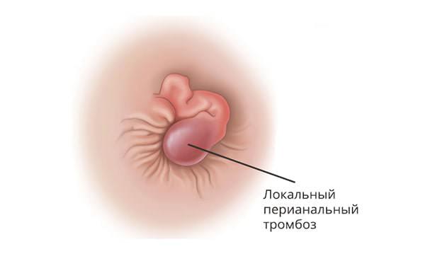 Локальный перианальный тромбоз