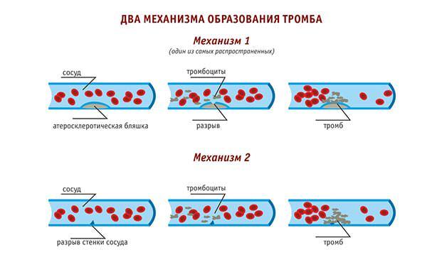 Механизмы образования тромба