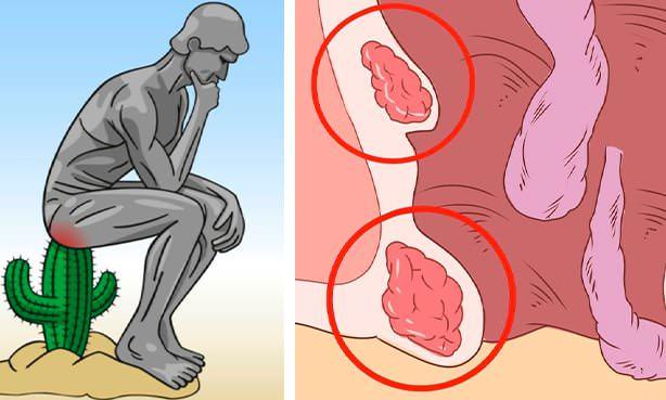Симптомы геморроидальных шишек
