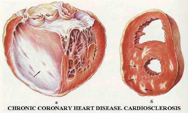 Постинфарктный крупноочаговый кардиосклероз