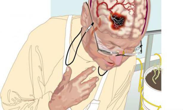 Поражение головного мозга при инсульте