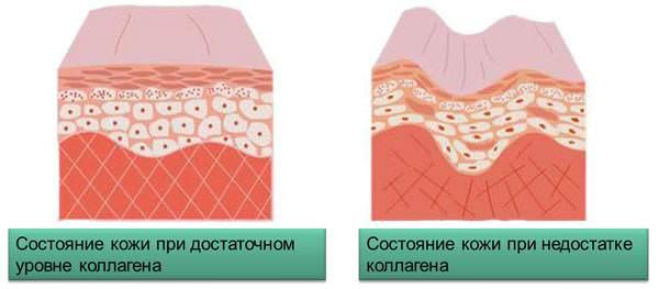 Влияние коллагена на здоровье кожи