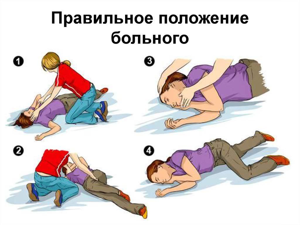 Правильно положение больного при инсульте или инфаркте