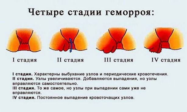 4 стадии геморроя