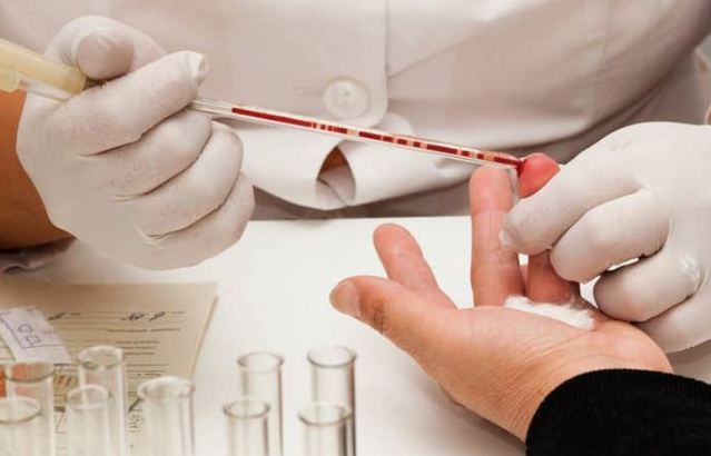Общий анализ крови при ВИЧ показатели, указывающие на вирус