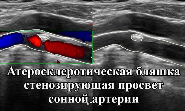 Стеноз коронарной артерии на УЗИ