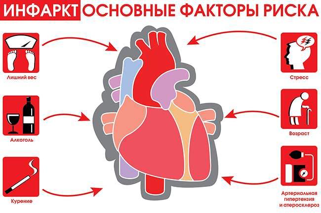 Факторы риска инфаркта